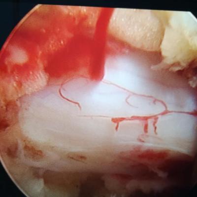 椎间孔镜学术椎间孔镜培训椎间孔镜使用