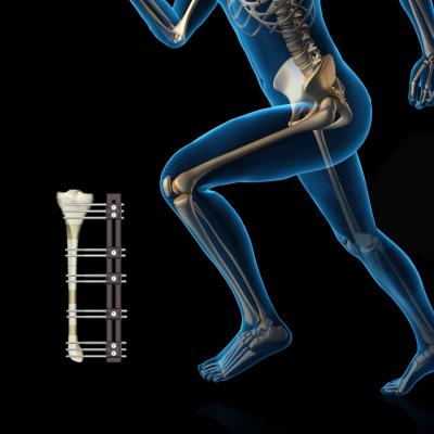 康菲斯肢体重建外固定支架_单臂式骨科外固定支架