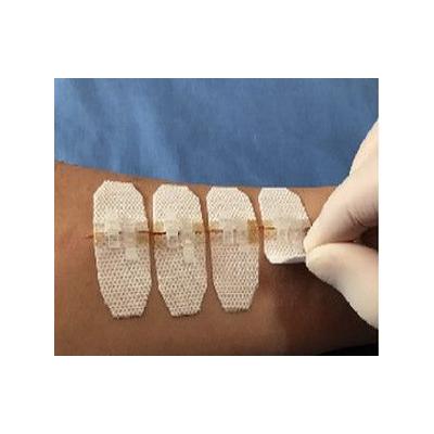 罡恒一次性无创皮肤缝合器(皮肤减张闭合器)
