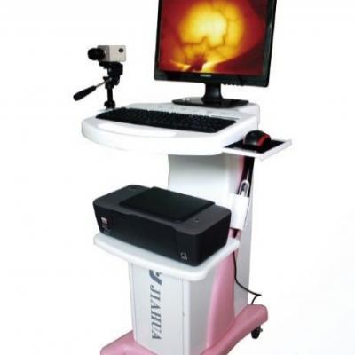 红外乳腺诊断仪厂家