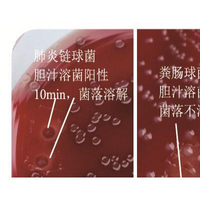 胆汁溶菌试验试剂(BIL)