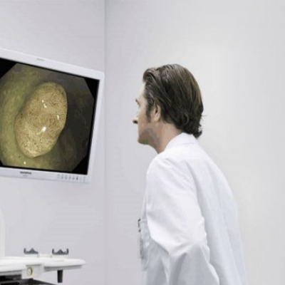 奥林巴斯电子胃肠镜CV290
