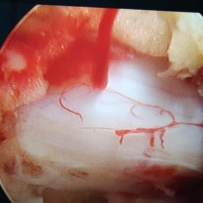 骨科微创椎间孔镜器