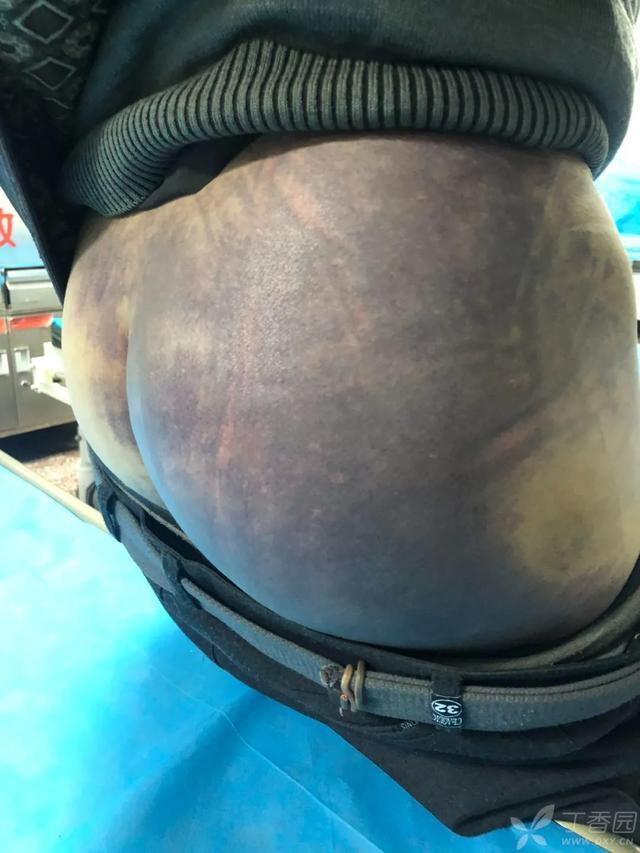 臀部皮肤现大片瘀斑,这是「屁股中毒了」?